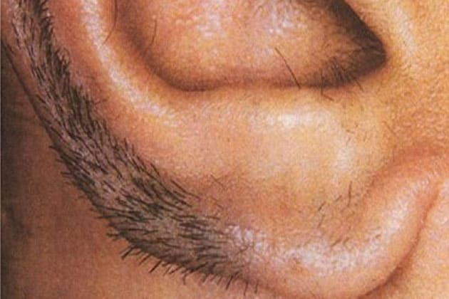 Know some interesting facts about those who have hair in their ears.