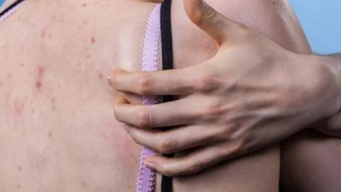 3 main causes of back acne that are important to know about
