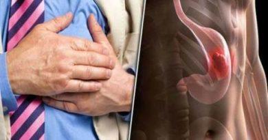 यदि शरीर इस तरह का संकेत देता है, तो समझें आपको है पेट का कैंसर