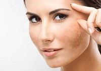 चेहरे में झाइयां क्यों होती हैं और झाइयों को कैसे ठीक कर सकते हैं? जानिए